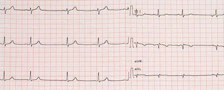 Electrocardiogram example of a normal 12-lead sinus rhythm, medical concept