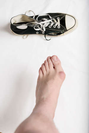 consequence: Hallux valgus, bunion in foot, with a quickly ruined shoe as a consequence of wearing it.