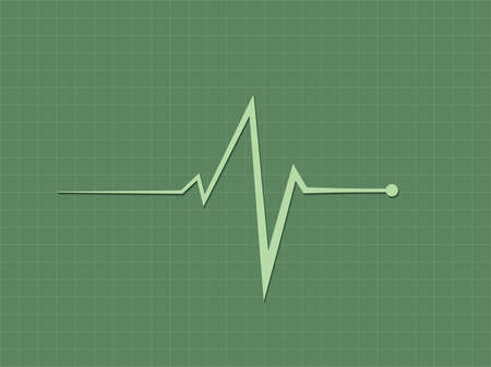 A green heart beat sign displaying in cardiograph monitor to diagnosis heart condition in hospital bed vector illustration