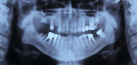 fillings: x-rays of the jaw and teeth fillings Stock Photo