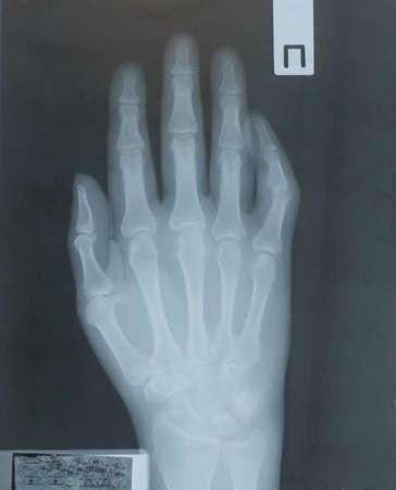 Röntgen der Hand des Patienten mit Osteoarthritis Standard-Bild - 72183589