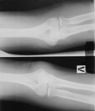 Röntgenaufnahmen des Ellbogengelenks eines Patienten mit Arthrose Standard-Bild - 70816150