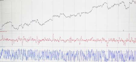 Grafik-Monitor Aktien und Währung Bars und Kerzen Standard-Bild - 72549574