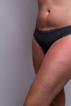 Close up of woman with sunburn on legs. Displaying one leg. Showing no face. Stockfoto