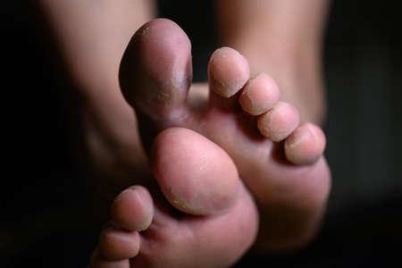Close up of woman feet having tinea pedis althletes fungus infection