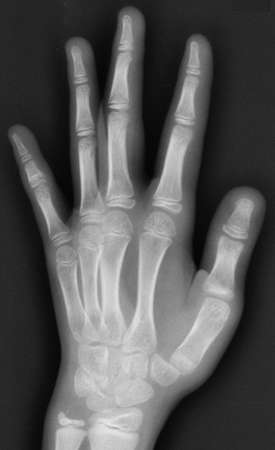 Film x-ray of both hands and wrists
