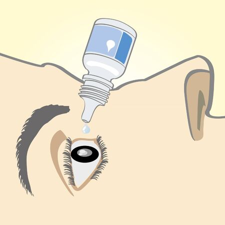apply eye drops Stock Vector - 16028782