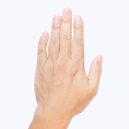 clinodactyly fingers isolated on white background isolated fifth finger clinodactyly Dupuytren disease and Disabled Hands