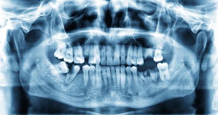 periodontal: Panoramic dental x-ray image of teeth  Stock Photo