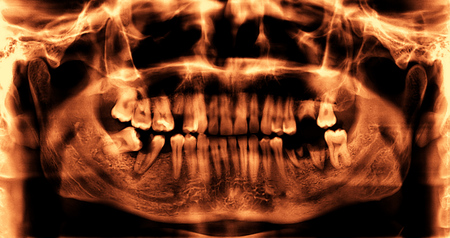 missing bite: Panoramic dental x-ray image of teeth  Stock Photo