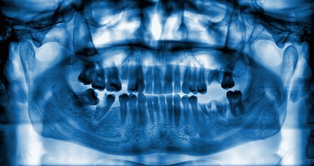 x rays negative: Panoramic dental x-ray image of teeth  Stock Photo