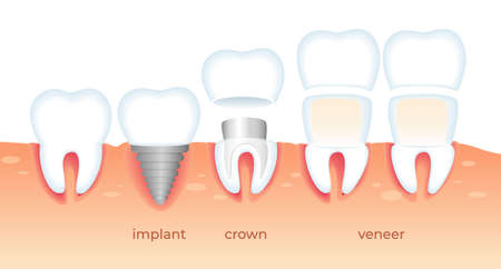 Visualization of Different Ways Orthodontic Restoration. Implant, Crown, Dental Veneer Isolated on White Background. Set of Teeth Problem. Diseased Tooth. Stomatology Aid Flat Vector Illustration. Zdjęcie Seryjne - 124018697