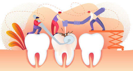 Little People Drilling Huge Unhealthy Tooth with Caries Hole. Teeth Treating. Man Holding Dentistry Mirror. People Working Together. Stomatology. Dental Disease. Cartoon Flat Vector Illustration.