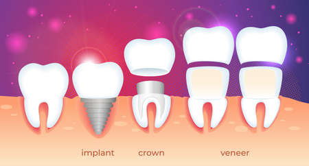 Set of Teeth Problem. Diseased Tooth in Human Gum. Visualization of Different Ways Orthodontic Restoration. Implant, Crown, Dental Veneer on Gradient Background with Sparkles. Flat Vector Illustration