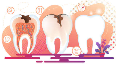 Healthy and Unhealthy Teeth Stand in Raw. Tooth Decay Cross Section with all Parts and Caries Hole. Dentistry Icons with Implantat, Toothpaste and Brush on White Background. Flat Vector Illustration