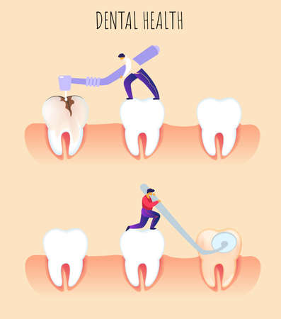 Flat Banner Dental Health Prevention Dentistry. Man Examines and Treats Teeth. Closeup Human Teeth. Teeth Little Man Seals Broken Tooth. Caries on Previously Sealed Tooth Surfaces.