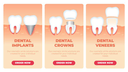 Set Inscription Dental Implants Crowns Veneers. Our Cosmetic Smile Solutions are Created for your Individual Needs. Vector Illustration Landing Page. Healthy Tooth and Restored or Improved Tooth.