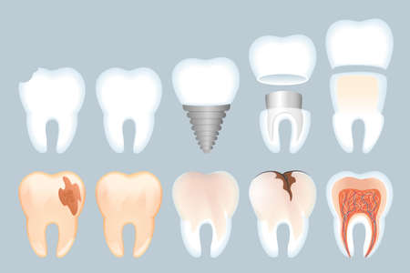 Realistic Tooth Structure Vector Illustration. Close-up Structure Teeth. Healthy Natural Tooth and its Destruction. Problems with Enamel. Healthy Dental Implant and its Structure 3d.