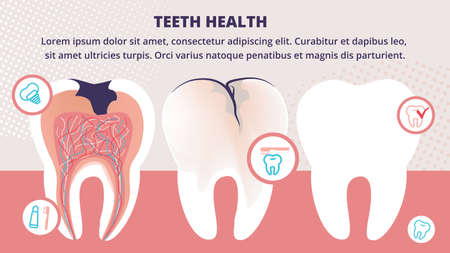 Healthy and Unhealthy Teeth Stand in Raw. Tooth Decay Cross Section with all Parts and Caries Hole. Dentistry Health Icons with Implant, Toothpaste and Brush Cartoon Flat Vector Illustration, Banner