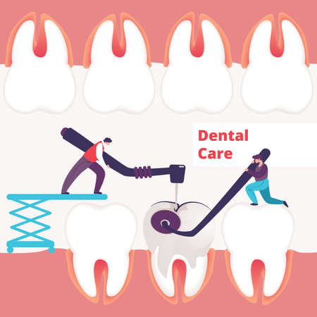 Tiny Dentists Men Treating Giant Unhealthy Tooth with Caries Hole Drilling Plaque. Guy Hold Stomatology Mirror. Dentistry People Working Together for Dental Care Teeth Cartoon Flat Vector Illustration