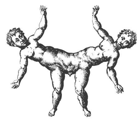 conjoined: Illustration - Male twins conjoined at the pelvis - vintage engraving  Old engraved illustration  1585   Vector  Illustration