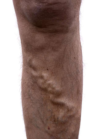 Varicose vein on mans leg. Stock Photo