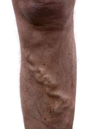 veins: Varicose vein on mans leg. Stock Photo