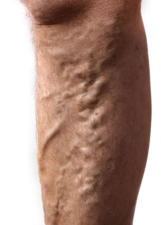veins: Cluster of varicose veins on side of mans leg. Stock Photo
