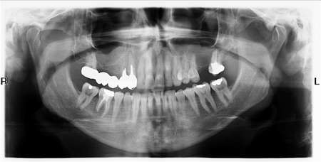 Panoramic X-Ray Image of Teeth  photo