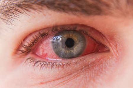 Macro close up of red eye with conjunctivitis infection