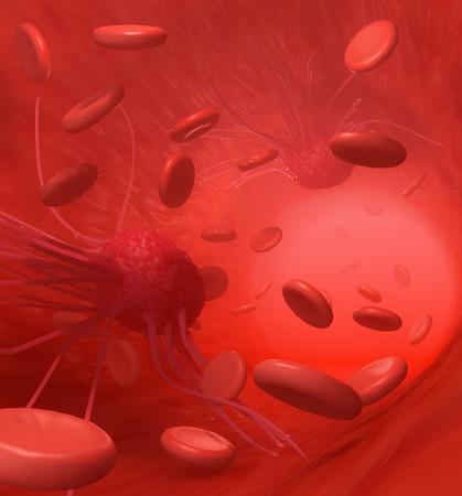 Cancer Cells Attac Tissue: Eine Abbildung, um Krebszellen im Zusammenhang und die Umgebungen, in denen sie sich ausbreiten, wie in dieser stilisierte Ansicht von innerhalb des Körpers dargestellt Standard-Bild - 43355054