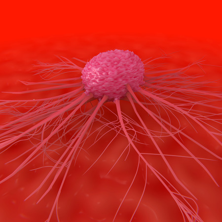 leukemia: An illustration depicting a cancer cell attached to tissue within the body.