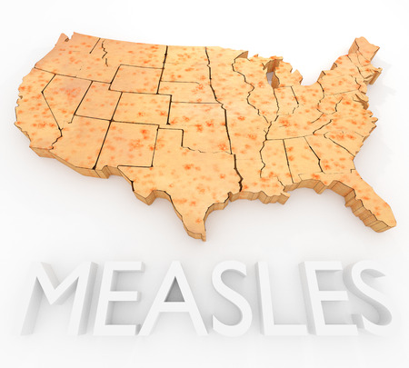 sores: An illustration related to the Measles Virus outbreak in the United States. Stock Photo