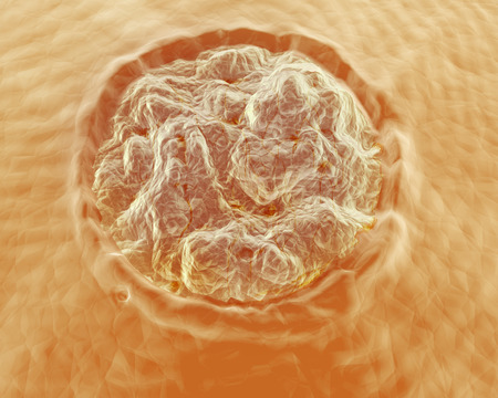 fu�sohle: Eine Abbildung einer Warze oder Verruca plantaris hautnah auf der Haut. Verruca plantaris ist eine Warze durch das menschliche Papillomavirus HPV auf der Sohle Latin planta oder Zehen des Fu�es auftritt verursacht.