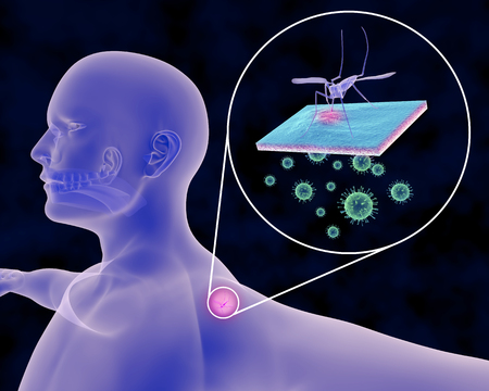 An illustration related to Mosquito-Borne Infections such as Malaria, Zika, Yellow Fever, West Nile Virus, Dengue, Chikungunya and host of other diseases. Depicted is a person receiving a mosquito bite and an expanded view of the viruses beneath the skin.