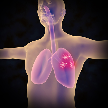 An illustration depicting cancerous growths on the lungs