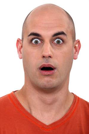 hombre calvo: el hombre sorprendido calva