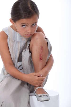 lesionado: Chica joven con una pierna lesionada Foto de archivo