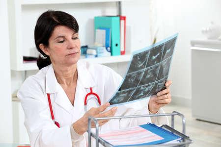 A doctor examining a radiography. photo