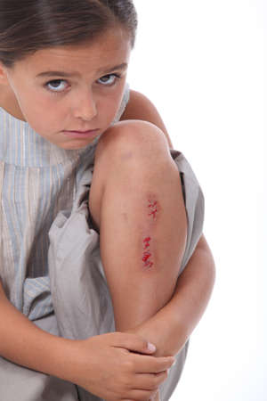 sore eye: Little girl with grazed knee Stock Photo