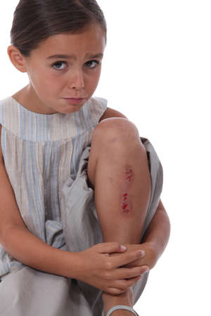 poor children: a little girl with a  wounded leg Stock Photo