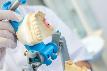 Zubař přípravě zubní formy