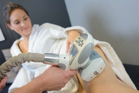 varicose veins: woman getting laser treatment on her legs Stock Photo