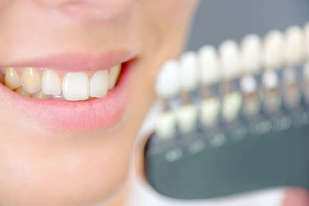 Lady smiling next to teeth samples Stock Photo