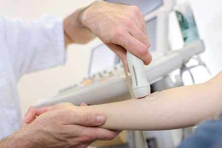 findings: ultrasonography on the arm Stock Photo