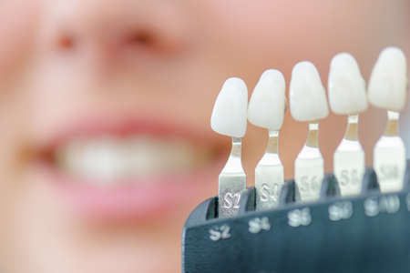 correlate: Numbered individual false teeth for colour match