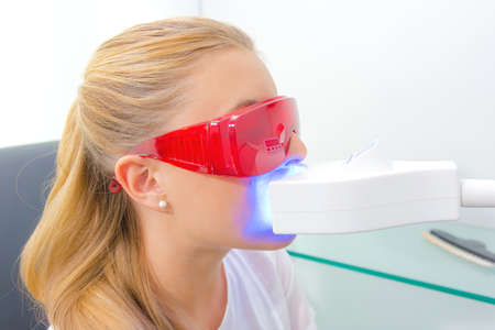 nonsurgical: Closeup of lady have ultra violet dental treatment