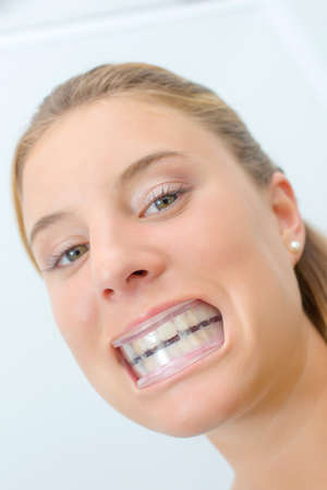 Woman wearing mouth guard after whitening Stock Photo