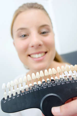 colouration: Lady showing teeth to match with color samples