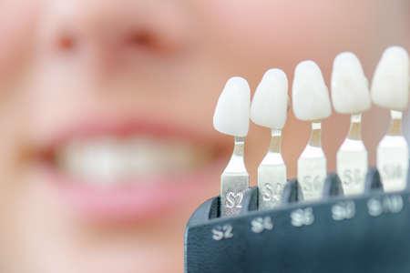 molares: teeth Foto de archivo